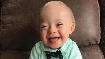 Kenalkan Ini Lucas, si Baby Gerber 2018 yang Menggemaskan
