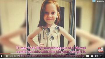 Ini Vika, Gadis Kecil yang Disebut Punya Kekuatan Magneto