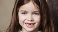 Walaupun ompong, Alisa tetap percaya diri senyum lebar, hi-hi. (Foto: Instagram/bragina__marina)