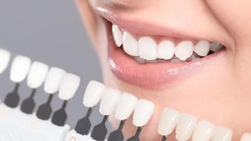 Bunda, Ketahui Penyebab Gigi Kuning dan Cara Menghilangkannya