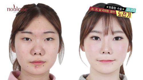 Transformasi 12 Pasien Pasca Operasi Plastik, Bikin Terbengong-bengong