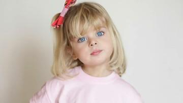 Claudia, Gadis Kecil Bermata Biru yang Cantik Seperti Boneka