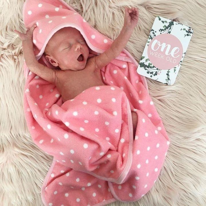 Baby Allie, begitu nama panggilan bayi cantik ini. Hoam, ngantuk ya, Nak? (Foto: Instagram @lamamatropicana)