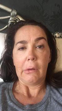 Gara-gara Botox, Wajah Wanita Ini Jadi Mencong