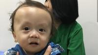 <p>Ini dia Ziona Eden Alexandra Panggabean, putri bungsu Joanna Alezandra. Di usia 11 bulan, Zio, panggilan akrabnya, didiagnosis campomelic dysplasia (CMD) yang merupakan penyakit langka. (Foto: Instagram @joannaalexandra)</p>