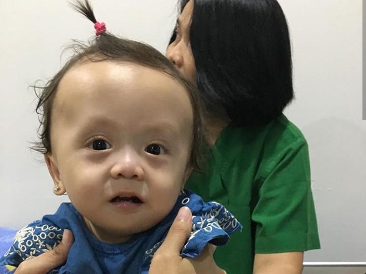 Putri bungsu Joanna Alexandra menghadapi penyakit langka. Keluarga bertekad membangun pandangan positif agar si bungsu tetap semangat.