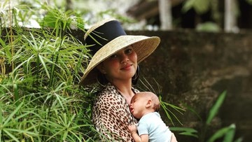 Mengenal Kondisi Kepala Peyang yang Dialami Anak Chrissy Teigen