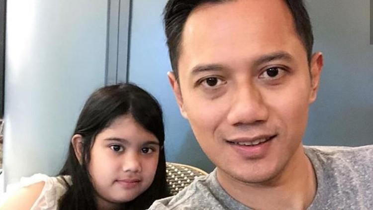 Aira, putri Agus Yudhoyono mengalami patah tulang di kaki. Agus menemani putrinya belajar menggunakan tongkat yang harus digunakan Aira selama patah tulang.