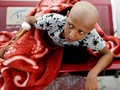 FOTO: Perang Yaman Lawan Kanker