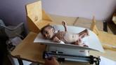Perang yang menahun di Yaman membuat lebih dari 11 juta anak terancam kelaparan, kekurangan gizi, penyakit, dan kekurangan akses layanan kesehatan.