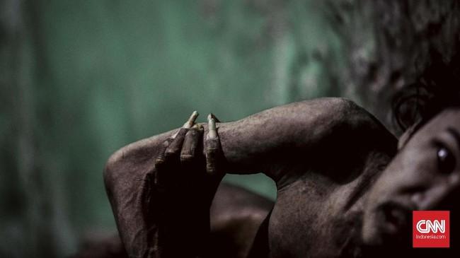 Gangguan kesehatan jiwa skizofernia bisa dialami sejak dini, seperti kisah Asep Kosasih yang kini telah dipasung 22 tahun.