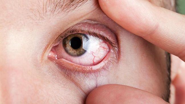 Kusta bukan penyakit kulit biasa. Penyakit yang satu ini bahkan bisa menjalar ke mata dan mengakibatkan kebutaan.