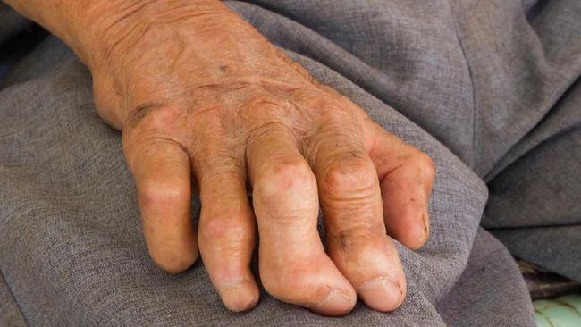 Keberadaan penyakit kusta sering kali dianggap sudah berakhir. Namun, penyakit kulit ini masih mengancam banyak orang di Indonesia.
