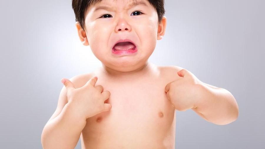 Bintik Merah di Kulit Anak Usai Minum Susu Bisa Jadi Tanda Alergi