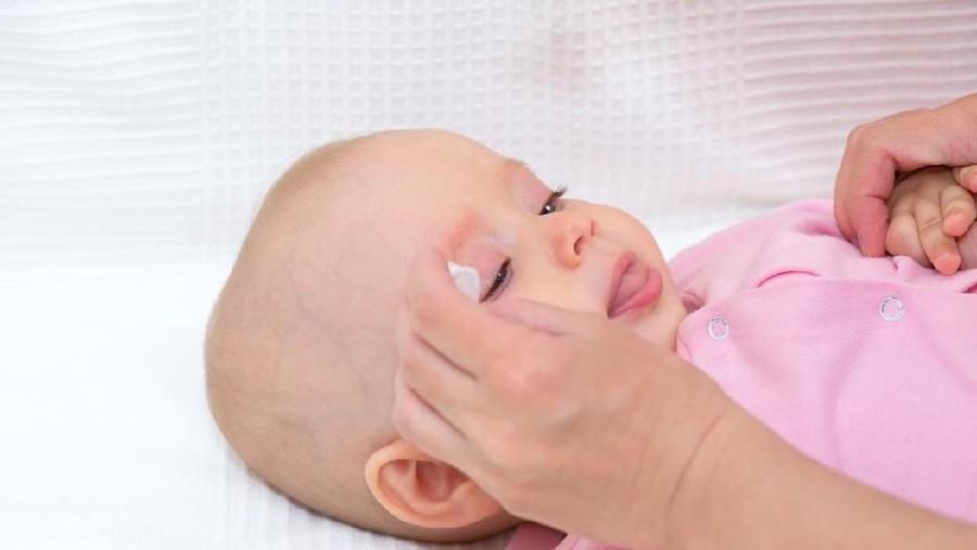ASI Bantu Sembuhkan Belekan pada Bayi, Mitos atau Fakta?