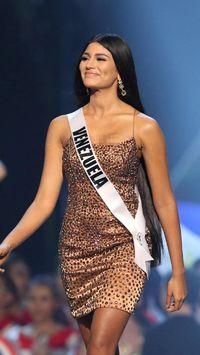 Ketahuan Oplas, Pemenang Ketiga Miss Universe 2018 Jadi Kontroversi