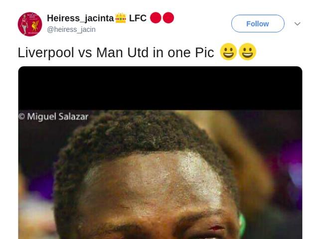 Kalah dari Liverpool, MU Jadi Bahan Tertawaan