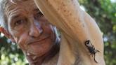 Racun kalajengking di Kuba dipercaya berkhasiat karena sifat anti-inflamasi yang ada di dalam kandungannya.