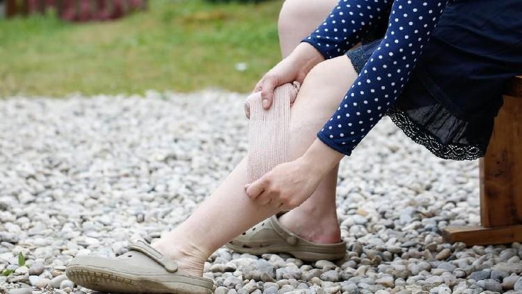 Sekitar 28 persen wanita hamil berpotensi mengalami varises. Cari tahu pencegahannya dengan memperbaiki posisi duduk, tidur, dan berdiri.