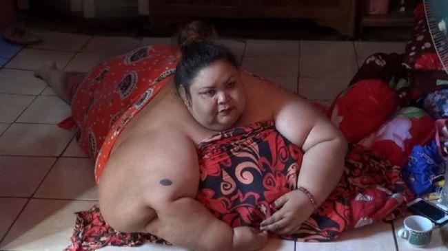 Menurut ahli gizi, obesitas yang menimpa Titi terjadi akibat dari kebiasaan makan dan pola hidup tidak sehat.