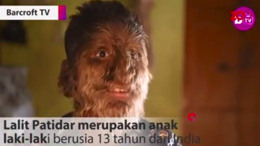 Kisah Bocah 'Werewolf', Tak Malu Meski Tubuh Dipenuhi Bulu