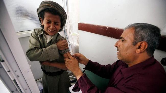 Menurut keterangan dari Kementerian kesehatan masyarakat dan populasi, setiap tahunnya ada setidaknya 30 kasus rabies di Yaman.