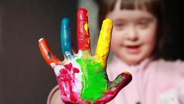 Berkenalan Lebih Dekat dengan Down Syndrome