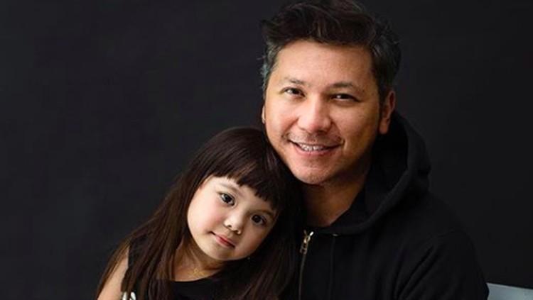 Gading Marten mengungkap penyebab putri kecilnya, Gempi mengalami mata minus.