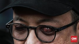 Polisi: Jika Benar Luka, Kasus Rekayasa Novel Akan Disetop