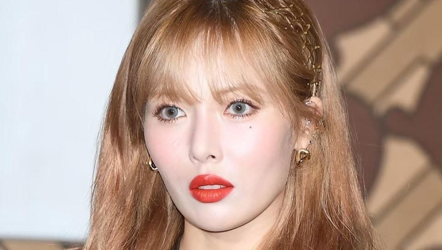 Insiden Memalukan 3 Artis Cantik Korea