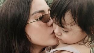 Curhat Alice Norin Soal Kaki Putrinya yang Berbentuk X