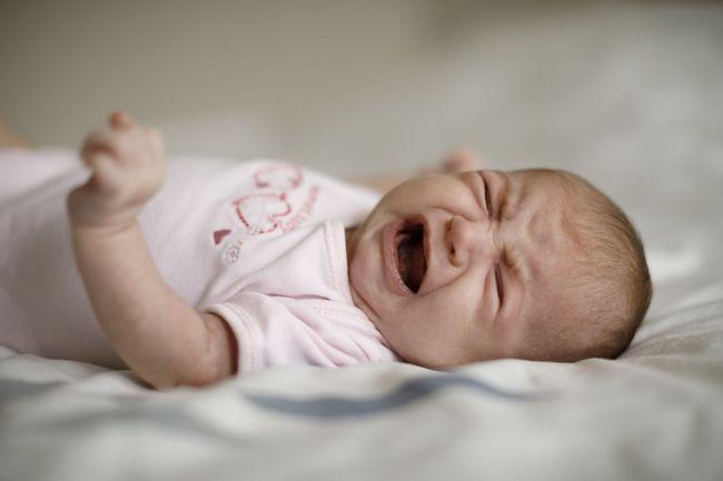 Cara Mengobati Herpes Pada Bayi