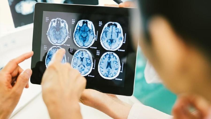 Bunda, Kenali Gejala Umum Kanker Otak yang Diidap Agung Hercules