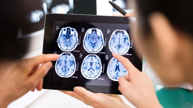 Stres disebut bisa memacu Alzheimer yang menyebabkan gangguan otak akibat menciut hingga residu memori negatif.
