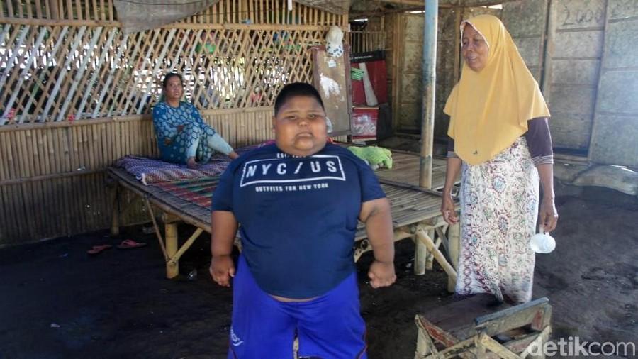 Belajar dari Satia Putra, Obesitas Bisa Ancam Nyawa Anak