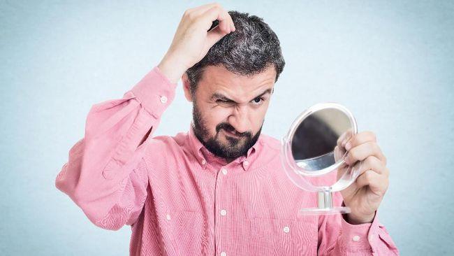 Beberapa orang mulai memiliki rambut beruban sejak dini. Apa saja penyebab uban muncul di usia muda?