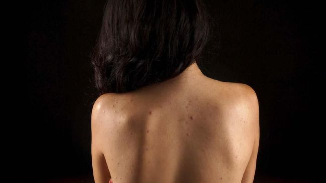 Meski tak terlihat, kemunculan jerawat di punggung atau bacne tentu cukup mengganggu. Berikut cara menghilangkan jerawat di punggung.
