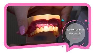 Begini Langkah-langkah Proses Veneer Gigi