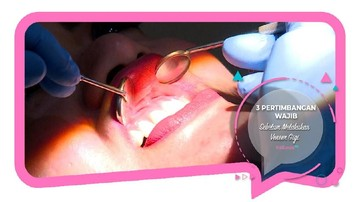 3 Pertimbangan Wajib Sebelum Melakukan Veneer Gigi