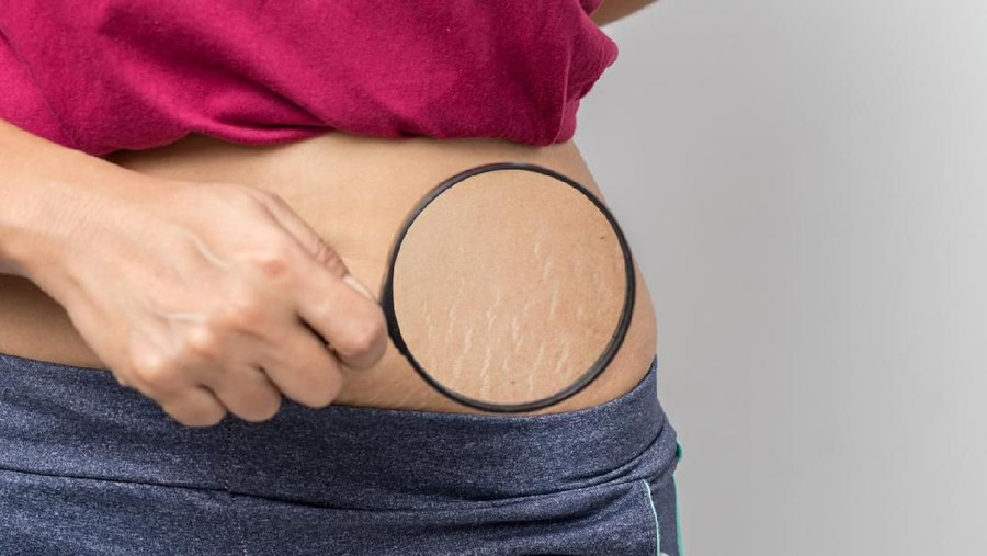 Mengatasi Masalah Kulit Ibu Hamil, Mulai dari Strecth Mark hingga Skin Tag