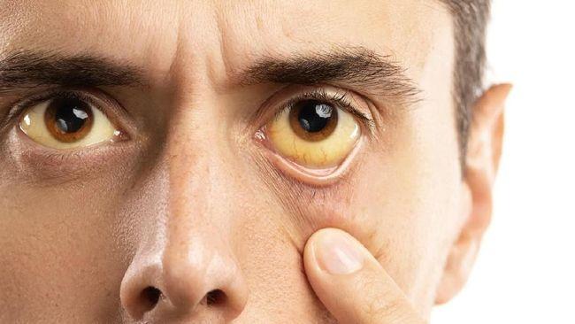 Kebiasaan mengucek mata ternyata bisa menimbulkan masalah kesehatan yang buruk, mulai dari infeksi hingga mata bintitan.