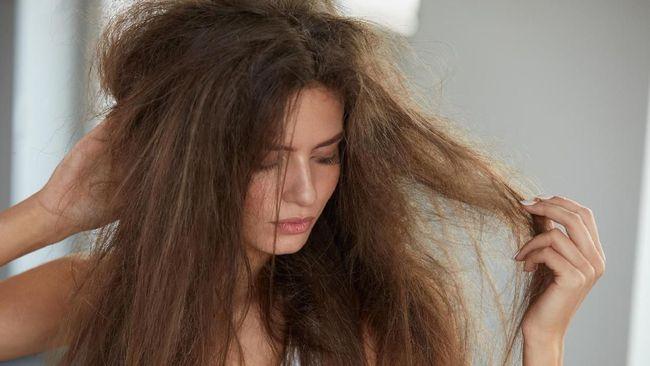 Untuk mencegah terjadinya rambut kusut dan kering, terdapat beberapa penyebab yang bisa Anda hindari. Berikut 4 penyebab rambut kusut dan kering.