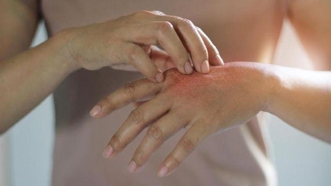 Udara dingin bisa menjadi salah satu alergen yang memicu timbulnya alergi. Berikut sejumlah gejala alergi dingin dan cara mengatasinya.