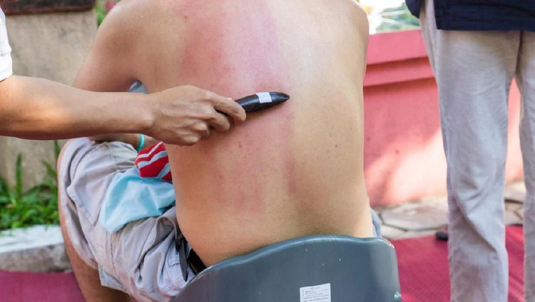 Masuk angin akrab di telingan masyarakat Indonesia. Kerokan pun jadi salah satu obat tradisional yang kerap diandalkan.
