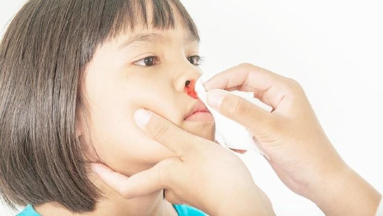 Simak ulasan lengkap tentang mimisan pada anak. Penyebab, faktor risiko, hingga cara tepat untuk mengatasinya.