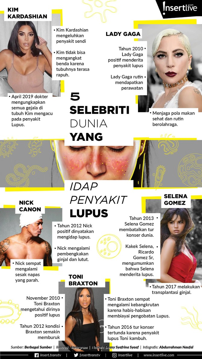 Infografis: 5 Selebriti Dunia yang Idap Penyakit Lupus