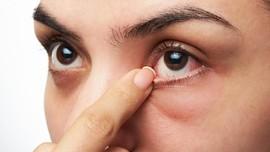 Mengenal Radang Kornea Mata yang Dialami Eunha GFRIEND