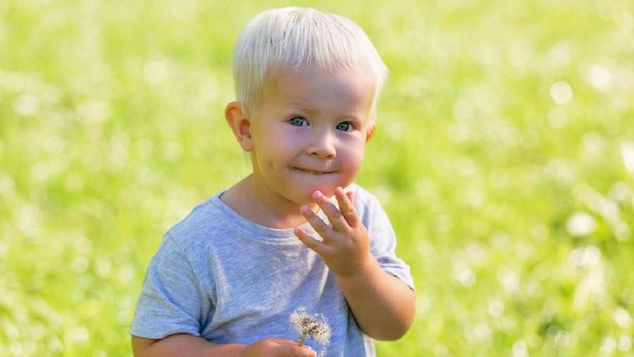 5 Jenis Kelainan Genetik Albino yang Perlu Bunda Tahu