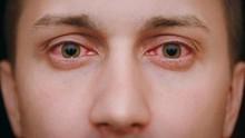 3 Gejala Awal Covid-19 yang Menginfeksi Mata