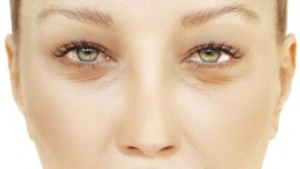 Tips Aman Memilih Lensa Kontak